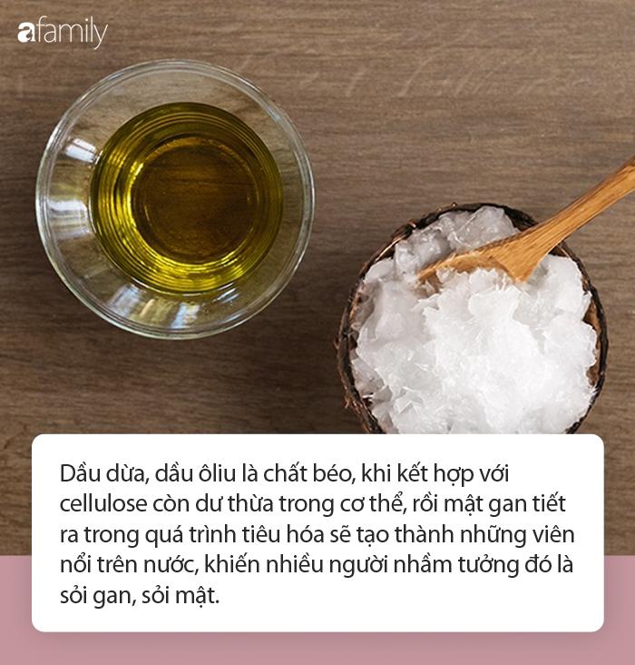 Xổ ra cả đống sỏi gan, sỏi mật nhờ uống dầu ôliu, dầu dừa: Sự thật kinh hoàng phía sau mới là điều bạn cần biết! - Ảnh 5.