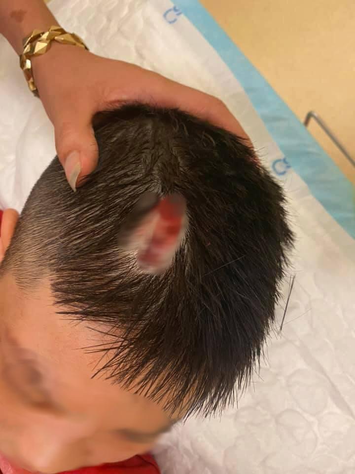 Hà Nội: Chổi lau nhà rơi từ tầng 5 chung cư xuống đất khiến 1 bé trai vỡ đầu phải nhập viện - Ảnh 4.
