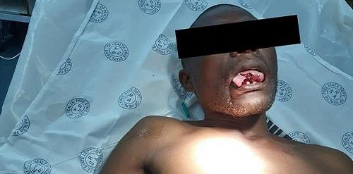 Nam Phi: Nữ bác sĩ tỉnh dậy cắn đứt lưỡi kẻ cưỡng hiếp trong bệnh viện - 2