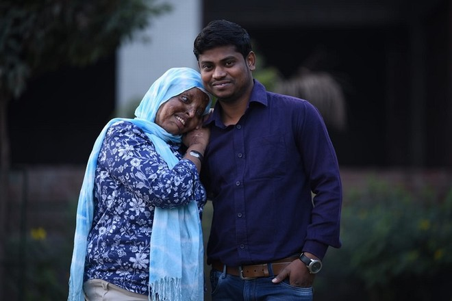 Cô gái mù lòa vì bị tạt axit chuẩn bị kết hôn với chàng trai chăm sóc cô suốt 5 năm - 6