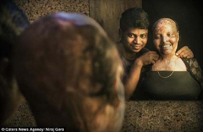 Cô gái mù lòa vì bị tạt axit chuẩn bị kết hôn với chàng trai chăm sóc cô suốt 5 năm - 2