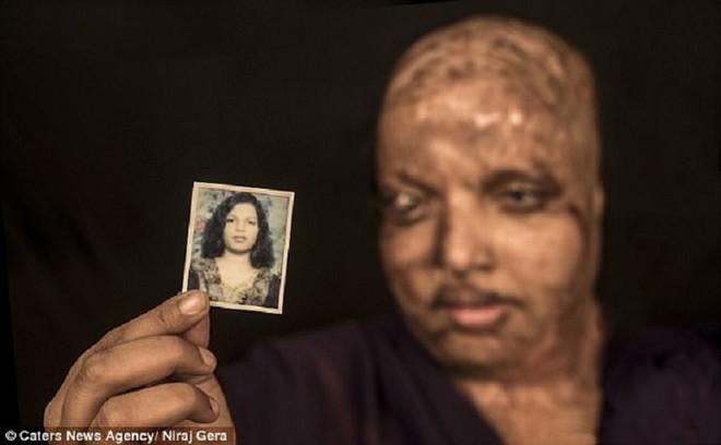 Cô gái mù lòa vì bị tạt axit chuẩn bị kết hôn với chàng trai chăm sóc cô suốt 5 năm - 1