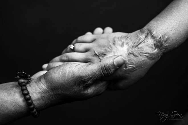 Cô gái mù lòa vì bị tạt axit chuẩn bị kết hôn với chàng trai chăm sóc cô suốt 5 năm - 8