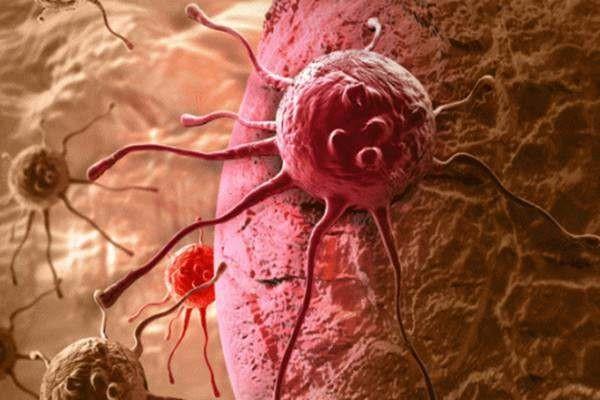 Nhiều người sợ ung thư nhưng không biết rằng ung thư cũng