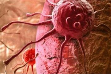 Ai cũng sợ ung thư nhưng không biết rằng ung thư cũng 'sợ' 5 điều này