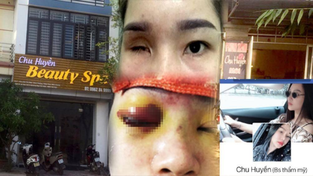 Nâng mũi tại cơ sở làm đẹp, cô gái Bắc Giang bị mù vĩnh viễn