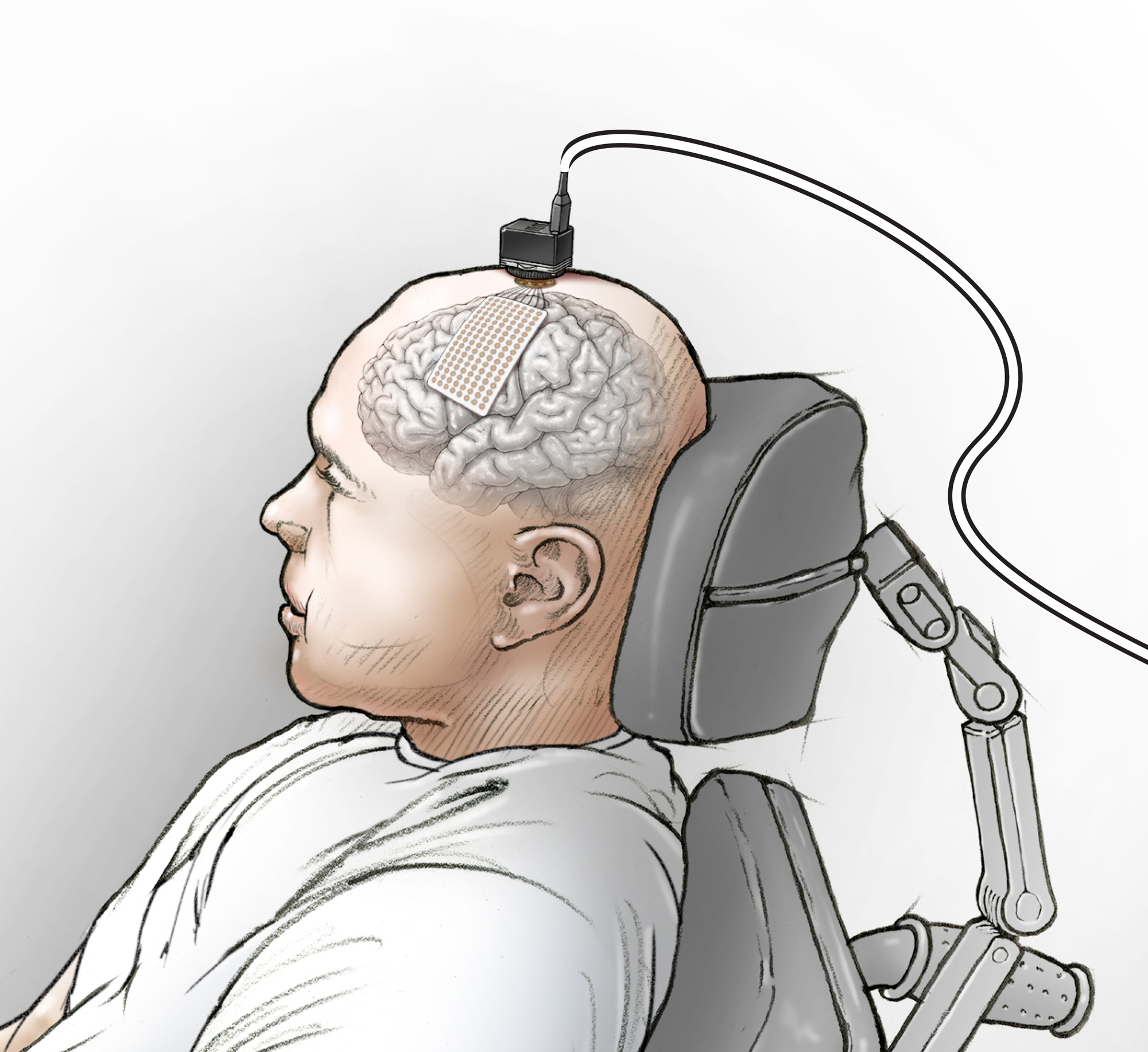 Các nhà khoa học nối não của một người câm với máy tính, và bây giờ anh ấy đã nói được - Ảnh 2.