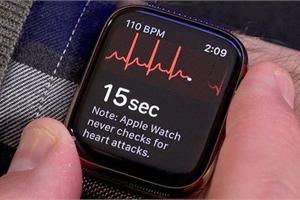 """Tính năng """"ăn tiền"""" của Apple Watch sắp sử dụng được tại Việt Nam"""