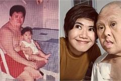 Cảm động thư mừng sinh nhật con gái viết tặng cha mắc hội chứng Down