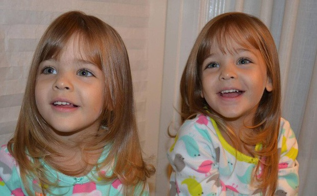 Cặp song sinh đẹp nhất thế giới: Mới 9 tuổi đã kiếm được hàng triệu đô la mỗi năm - 3