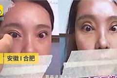 Thê thảm cô gái không thể nhắm mắt sau khi phẫu thuật cắt mí