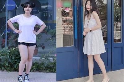 3 tháng giảm gần 30kg, nữ sinh phủ nhận 'lột xác' nhờ dao kéo