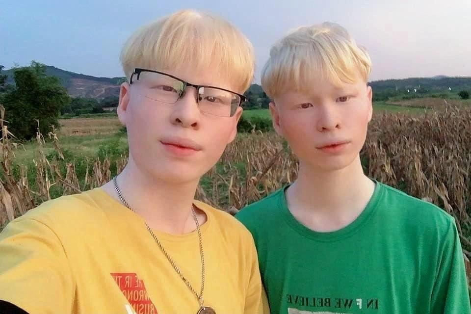 Cuộc sống đặc biệt của cặp song sinh bạch tạng hiếm gặp - 3