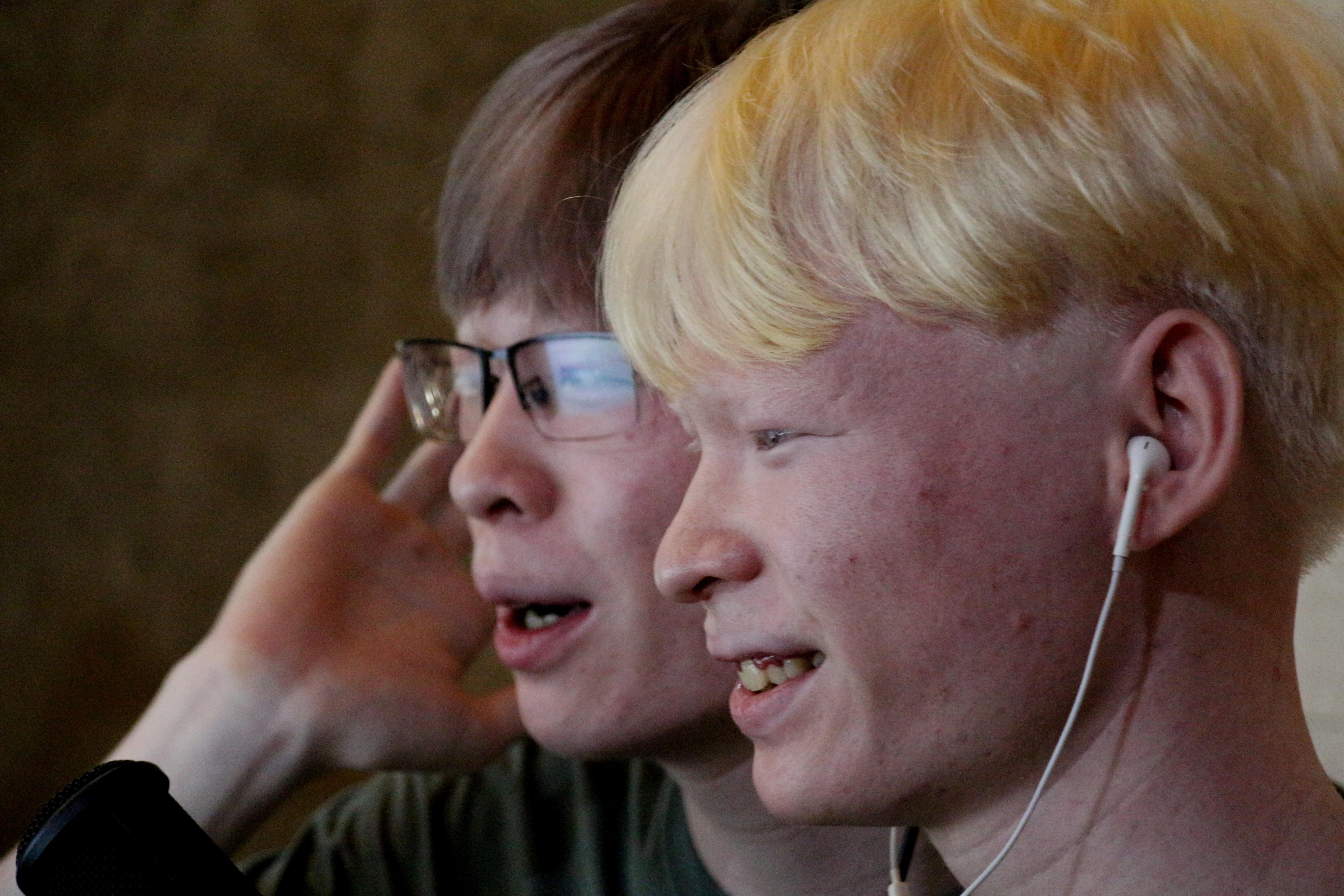 Cuộc sống đặc biệt của cặp song sinh bạch tạng hiếm gặp - 1
