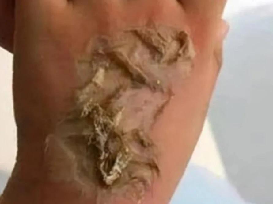 Bé gái 4 tuổi bị bỏng độ 3 vì smartwatch phát nổ trên tay - 2