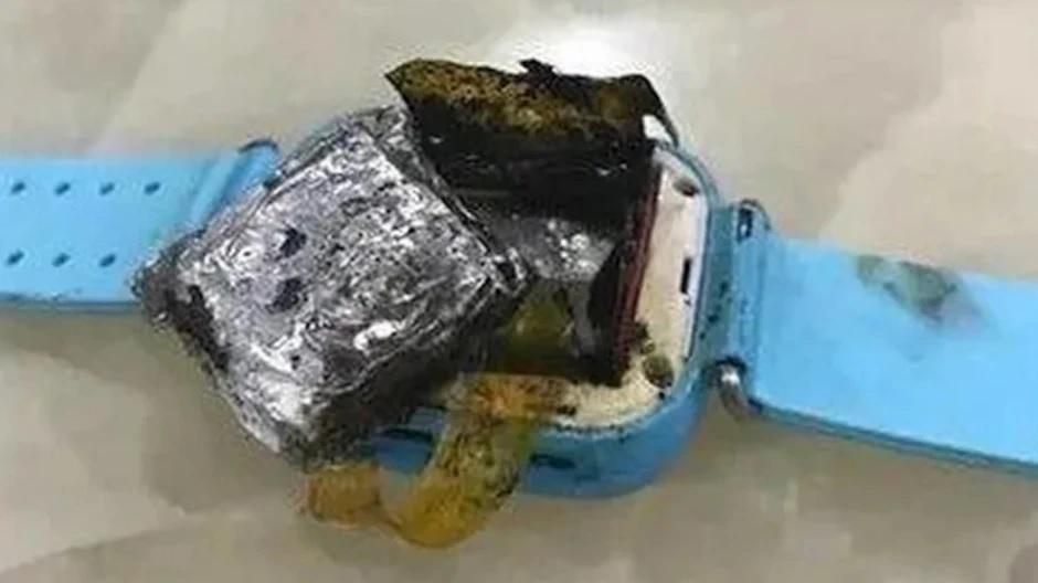 Bé gái 4 tuổi bị bỏng độ 3 vì smartwatch phát nổ trên tay - 1