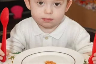 Mắc bệnh lạ, bé trai có thể chết nếu ăn quá 5 hạt đậu mỗi ngày