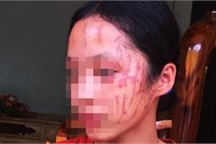 """Nghệ An: Nữ sinh lớp 8 bị """"đàn chị"""" cào nát mặt"""