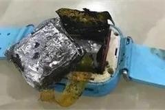 Bé gái 4 tuổi bị bỏng nặng vì smartwatch phát nổ trên tay