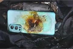 Mới mua hơn 2 tuần, smartphone bất ngờ phát nổ khiến chủ nhân bị thương