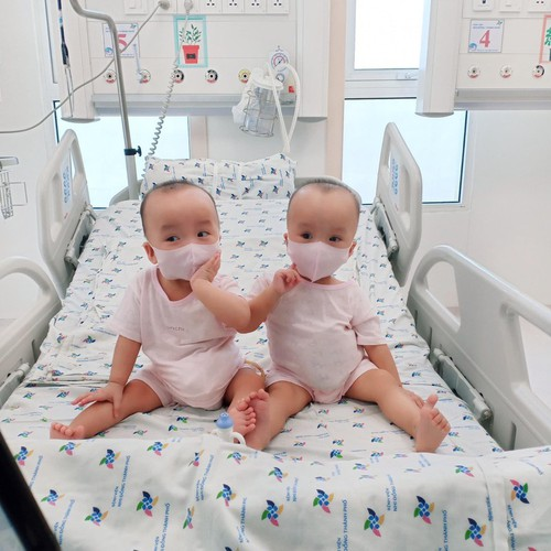 loving photos show conjoined twins after removal of leg cast hinh 1