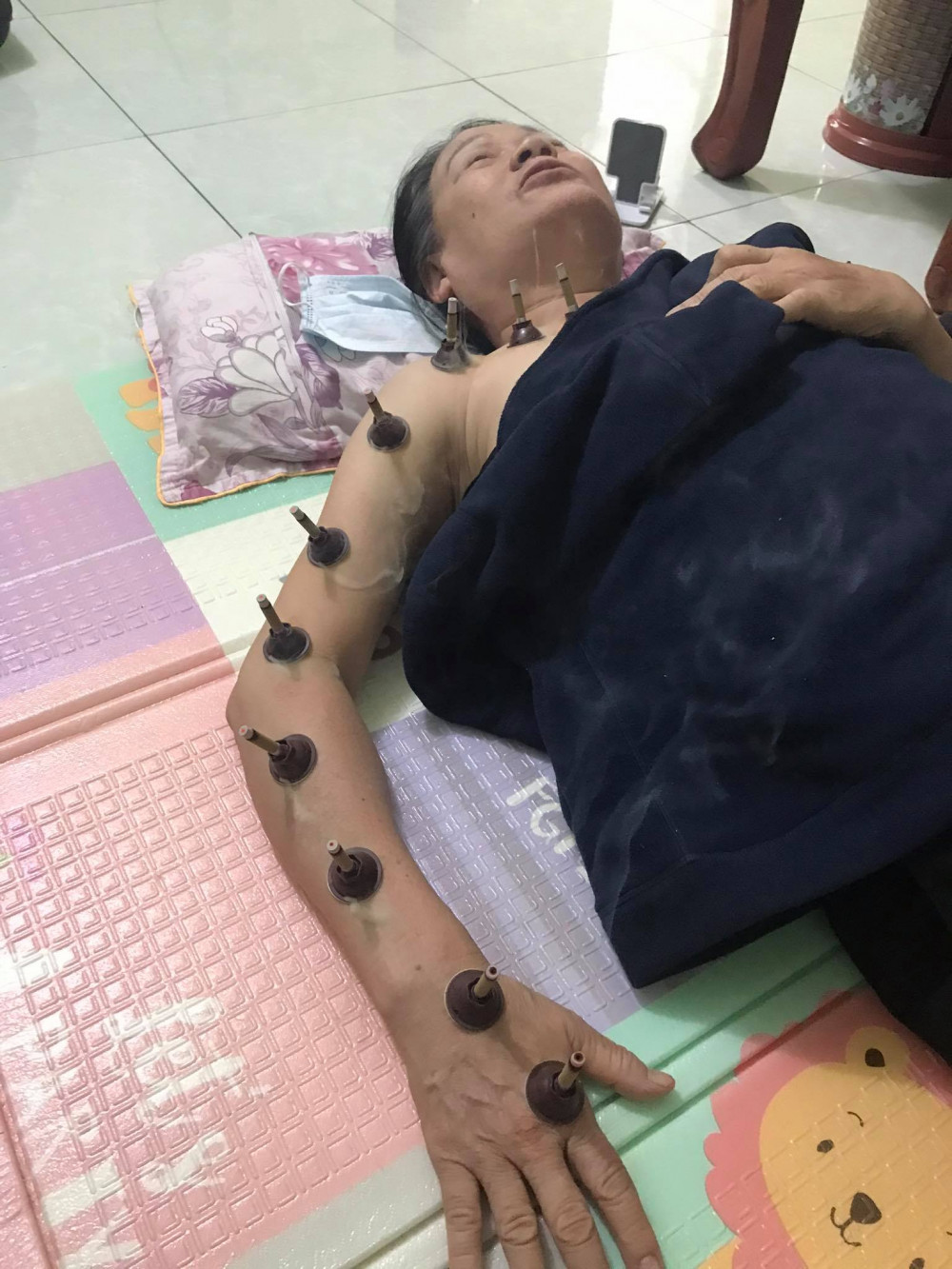 K phổi của mẹ vợ đã ở giai đoạn cuối, u đã bưng mủ không thể can thiệp bằng phẫu thuật, chàng rể không đầu hàng mà tự mình mày mò các biện pháp trị liệu để giúp bà có sức đề kháng tốt hơn (Ảnh nhân vật cung cấp)