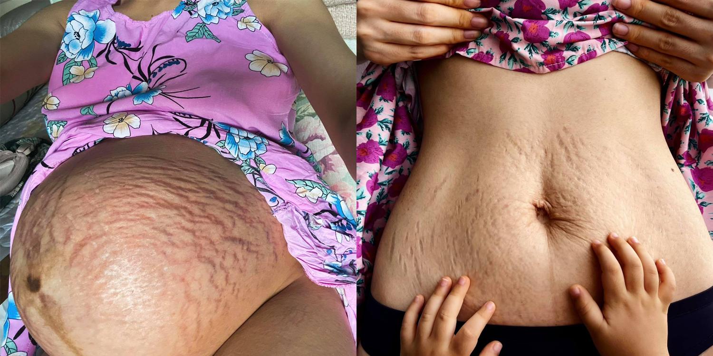 Hình ảnh vết rạn da trong khi mang thai và sau khi sinh con của Hoà Minzy