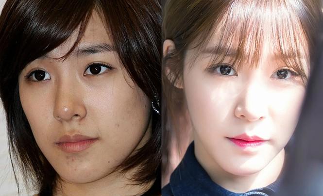 Sốc với hình ảnh làn da của các idol bị tàn phá do phải trang điểm quá nhiều - ảnh 7