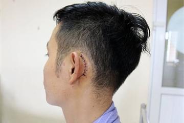 Quảng Ninh: Thủng màng nhĩ vì điện thoại đặt cạnh gối phát nổ khi đang sạc