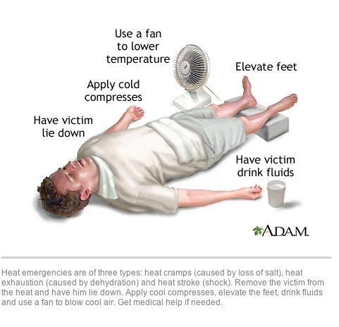 Sốc nhiệt là gì: Bạn nên sơ cứu thế nào và các biện pháp phòng tránh? - Ảnh 2.