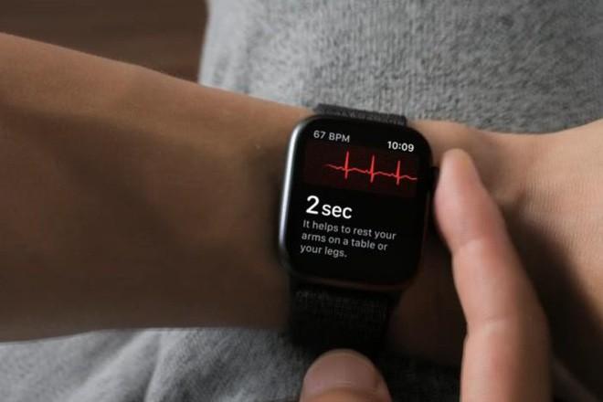 Bác sĩ người Anh cho rằng quá tin vào điện tâm đồ trên Apple Watch có thể gây hại nhiều hơn lợi - Ảnh 2.
