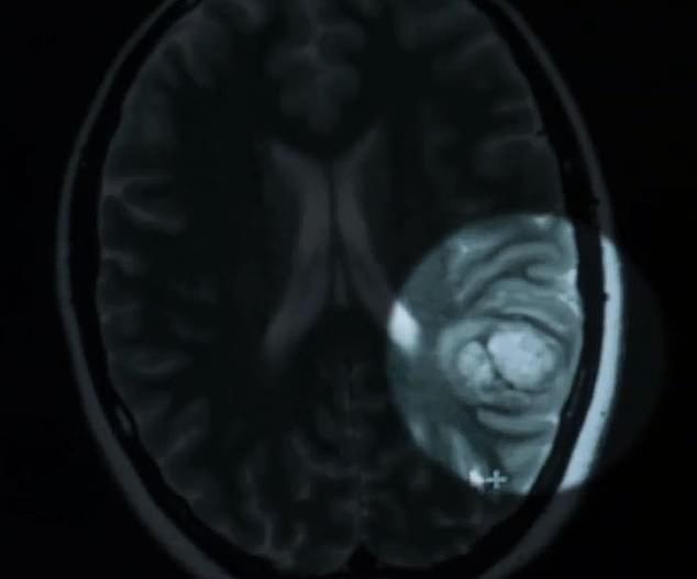 Cô gái 25 tuổi tỉnh táo livestream trong ca phẫu thuật não của chính mình - Ảnh 3.