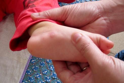 Trẻ bị tay chân miệng kiêng ăn gì? - ảnh 1