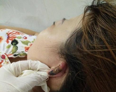Hai phụ nữ nhập viện vì bong da đầu, hoại tử vành tai sau khi làm tóc - ảnh 2