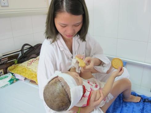 Ca ghép nối da đầu cho bé gái 2 tuổi đầu tiên tại Việt Nam - ảnh 2