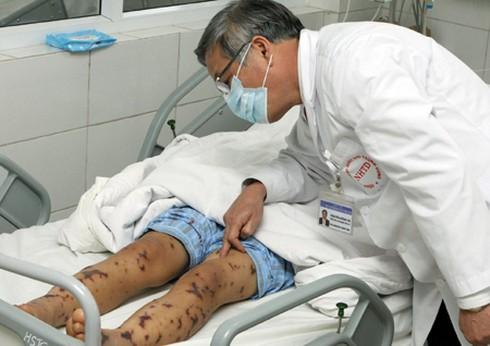 TP.HCM: Thêm một bệnh nhi nhiễm não mô cầu