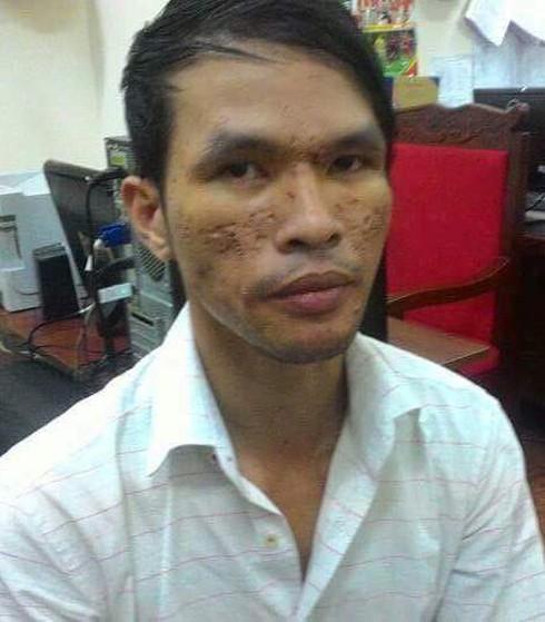 Vụ bạo hành hạ bé trai: Nghi phạm có thể sẽ không bị dẫn độ sang Campuchia - ảnh 2