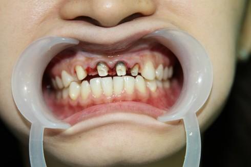 Đừng coi thường những đau nhức răng thoáng qua - ảnh 1