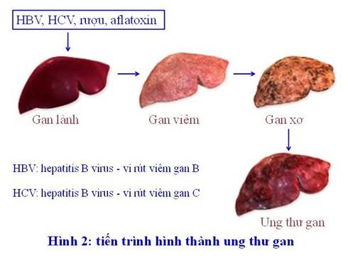GS Nguyễn Chấn Hùng: Điểm mặt những bệnh ung thư đến từ virus, từ miệng - ảnh 1