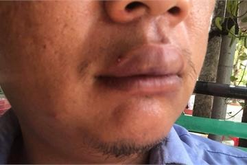 Người đàn ông lạ mặt hành hung phóng viên rồi kéo người đến đe dọa gia đình