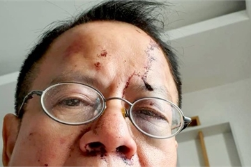 TP.HCM: Việt kiều bị đánh hội đồng trong quán karaoke
