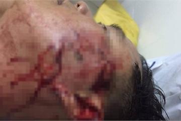 Đại úy Công an ở Sóc Trăng bị đánh thương tích trong quán nhậu