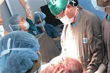 Phẫu thuật lấy khối u buồng trứng khổng lồ nặng 20kg