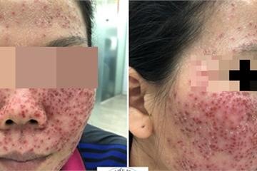 Nổi mụn chi chít vì… lột da mặt chữa mụn