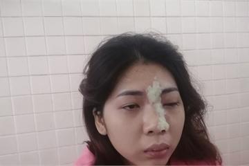 Tiêm filler nâng mũi, cô gái 21 tuổi mù mắt trái
