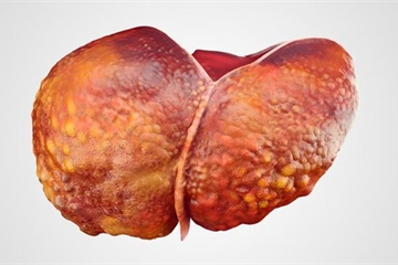 Gan nhiễm mỡ, sát thủ thầm lặng gây ung thư gan