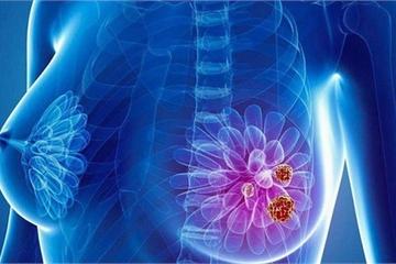Các phương pháp điều trị ung thư vú