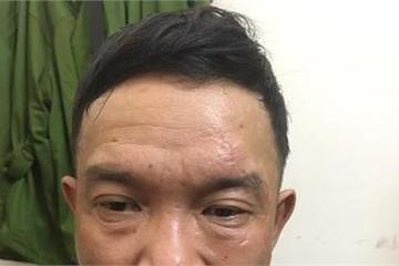 """Lâm Đồng: Hai """"siêu"""" trộm tái hành nghề sau khi mãn hạn tù"""
