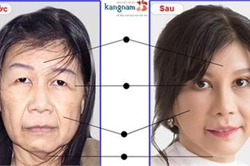 Bệnh viện Thẩm mỹ Kangnam quảng cáo gì về dịch vụ căng da mặt?