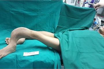 """Nắn thẳng đôi chân """"rễ cây"""" không có trong y văn"""